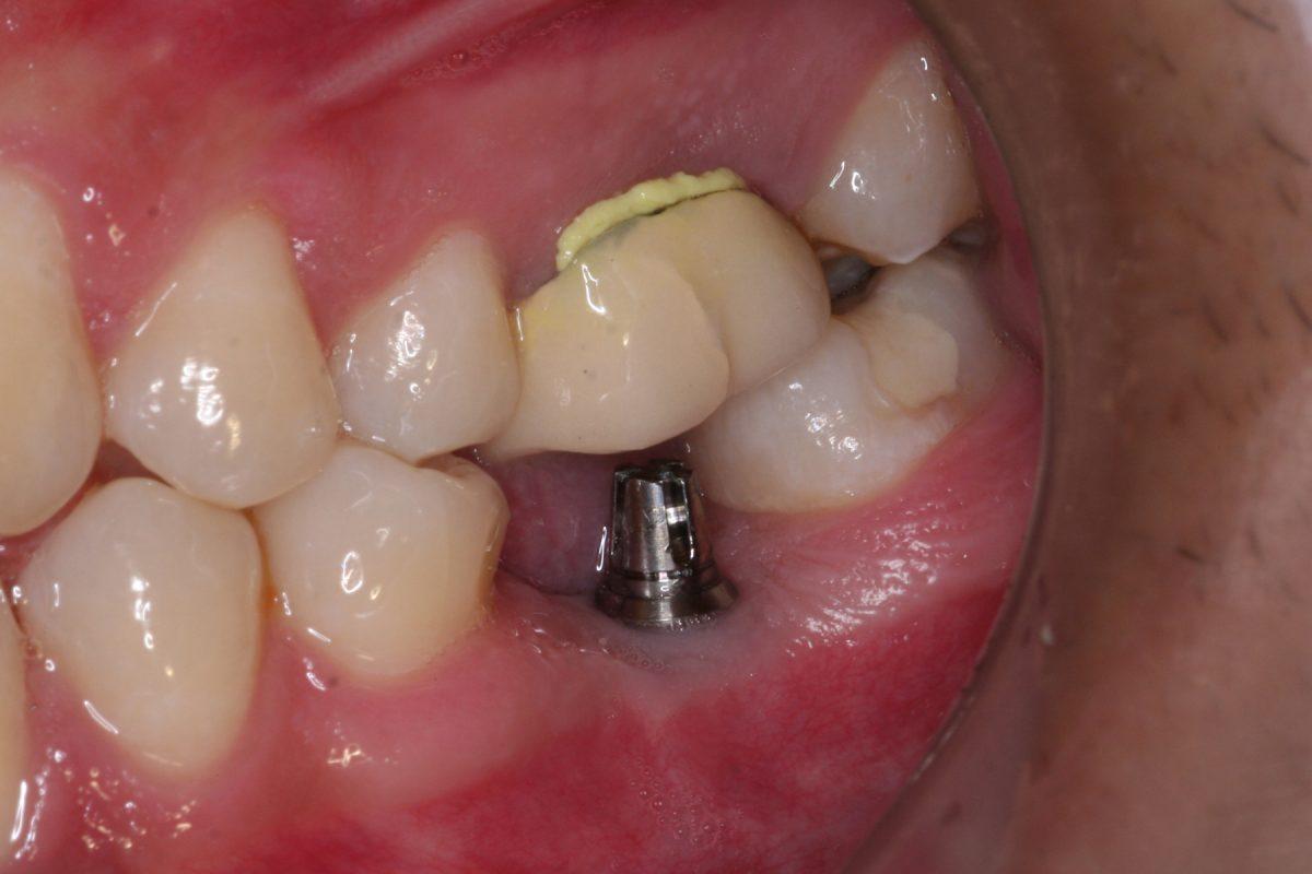 implant 1