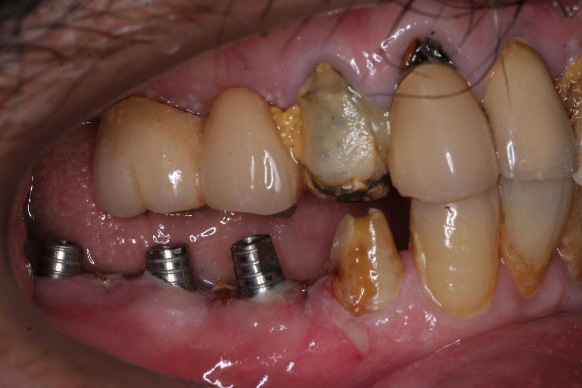 implant 3